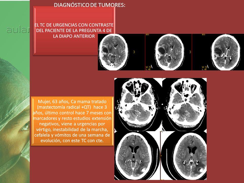 Curso 2012 PRUE DIAGNÓSTICO DE TUMORES: