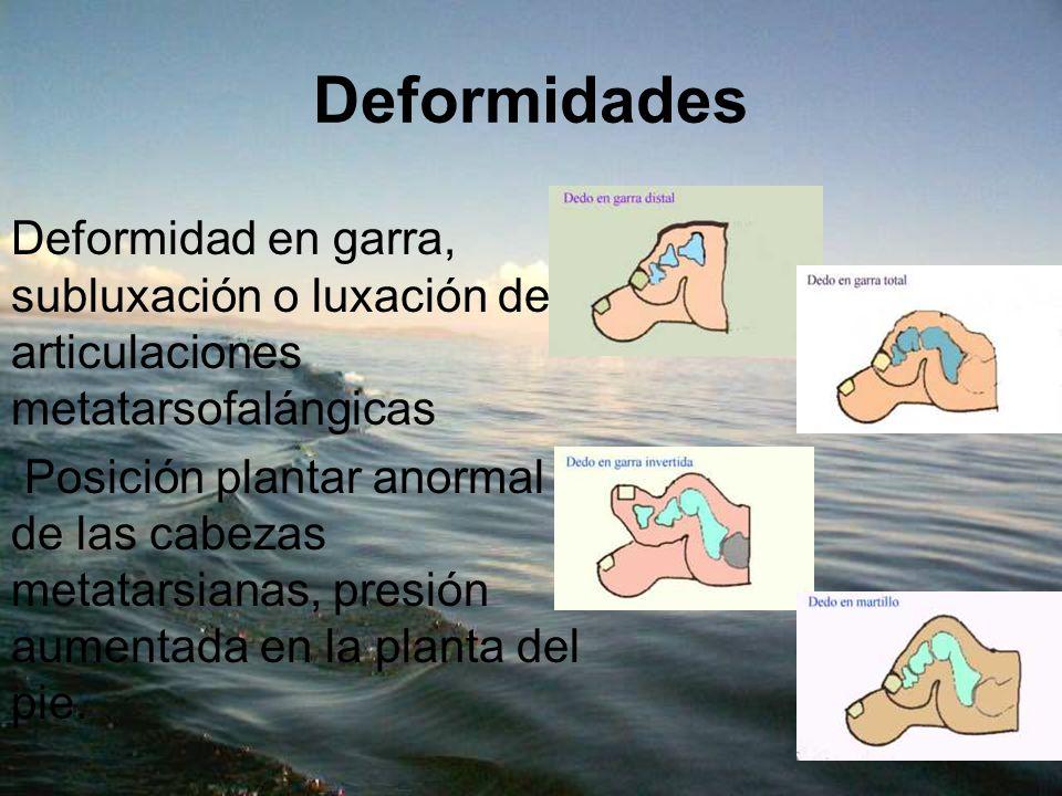 Deformidades Deformidad en garra, subluxación o luxación de articulaciones metatarsofalángicas Posición plantar anormal de las cabezas metatarsianas,