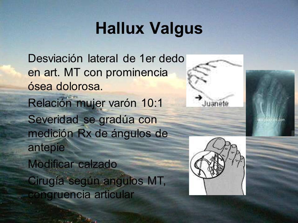 Hallux Valgus Desviación lateral de 1er dedo en art. MT con prominencia ósea dolorosa. Relación mujer varón 10:1 Severidad se gradúa con medición Rx d