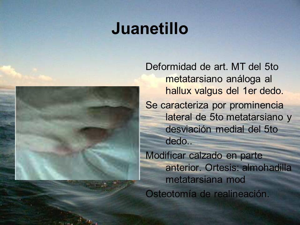 Juanetillo Deformidad de art. MT del 5to metatarsiano análoga al hallux valgus del 1er dedo. Se caracteriza por prominencia lateral de 5to metatarsian