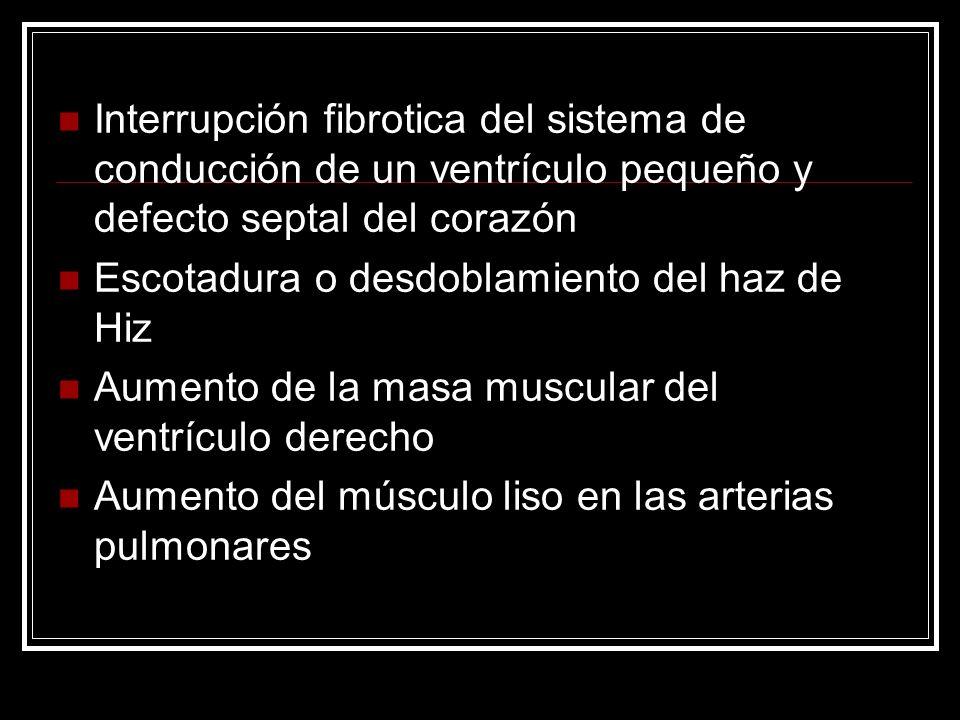 Interrupción fibrotica del sistema de conducción de un ventrículo pequeño y defecto septal del corazón Escotadura o desdoblamiento del haz de Hiz Aume