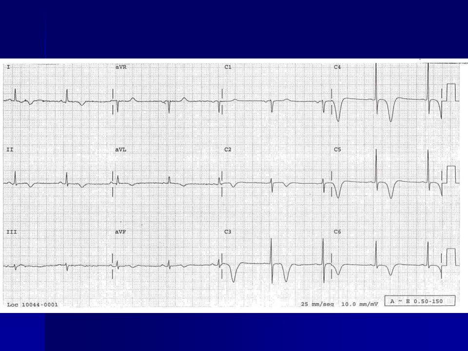 Evaluación del IMSTNE/AI Paciente con dolor toráxico tipo isquémico Triaje Aspirina 160 - 325 mg Obtener enzimas cardiacas basales Objetivol = 10 min