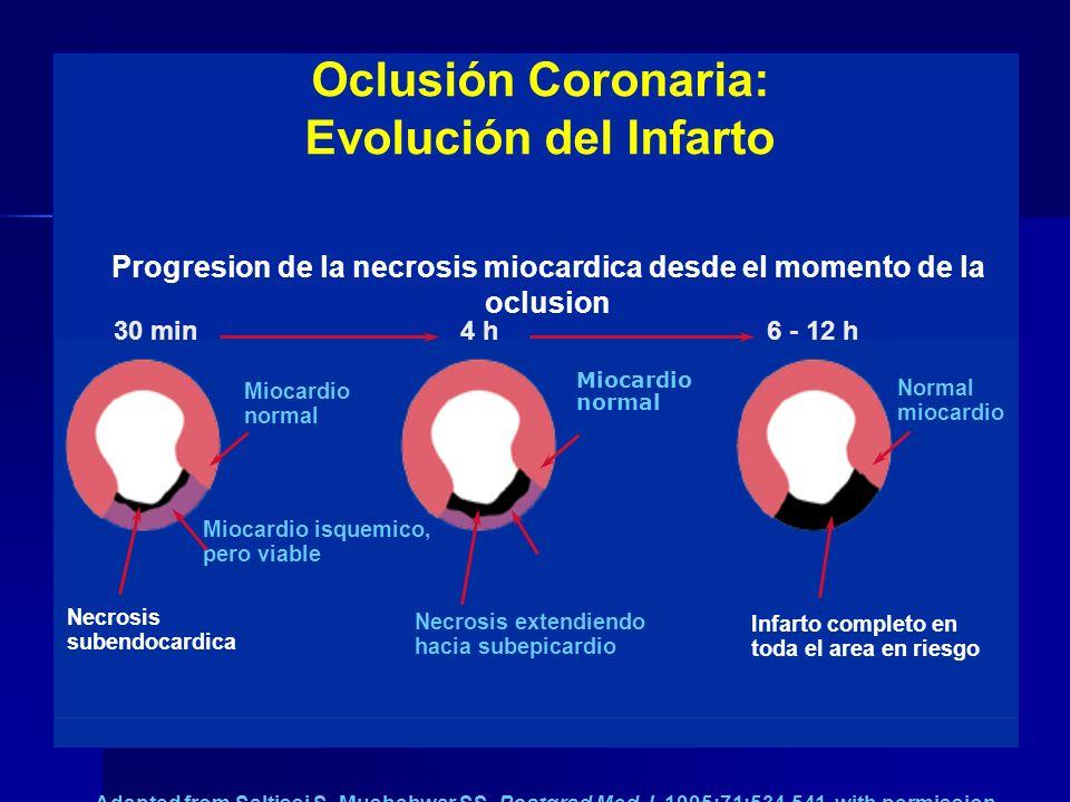 SINDROME CORONARIO AGUDO Dolor o disconfort Sintomas inestables ST-segmento no-elevado ST-segmento elevado Angina No-QQ Inestable IMAIMA ECG Reperfusi