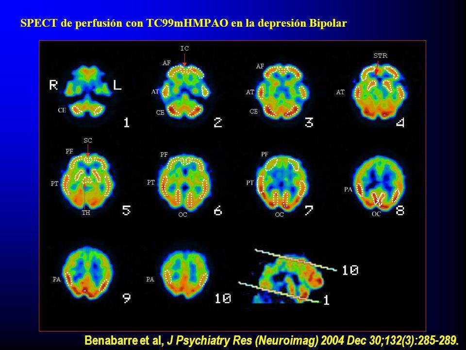 SPECT de perfusión con TC99mHMPAO en la depresión Bipolar Benabarre et al, J Psychiatry Res (Neuroimag) 2004 Dec 30;132(3):285-289.