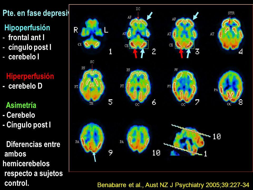 Pte. en fase depresiva Hipoperfusión - frontal ant I - cíngulo post I - cerebelo I Hiperperfusión - cerebelo D Asimetría - Cerebelo - Cíngulo post I D