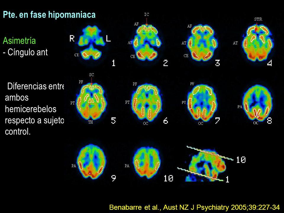 Asimetría - Cíngulo ant Diferencias entre ambos hemicerebelos respecto a sujetos control. Pte. en fase hipomaniaca Benabarre et al., Aust NZ J Psychia