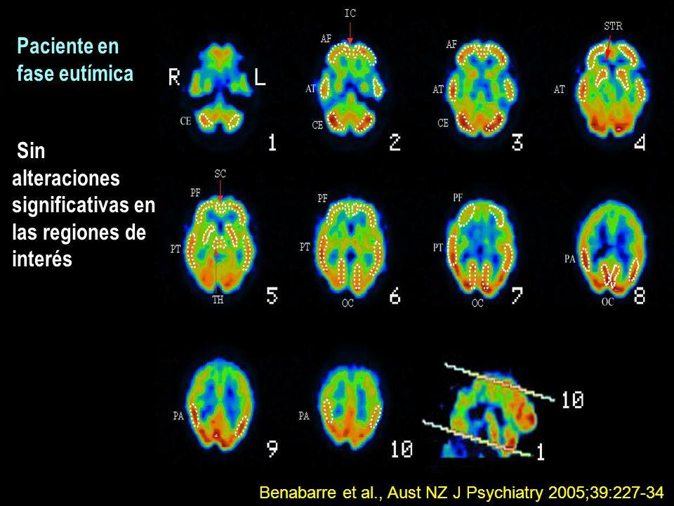 Sin alteraciones significativas en las regiones de interés Paciente en fase eutímica Benabarre et al., Aust NZ J Psychiatry 2005;39:227-34
