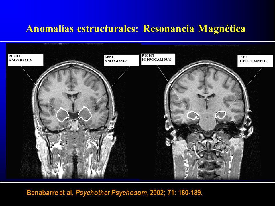 Anomalías estructurales: Resonancia Magnética Benabarre et al, Psychother Psychosom, 2002; 71: 180-189.