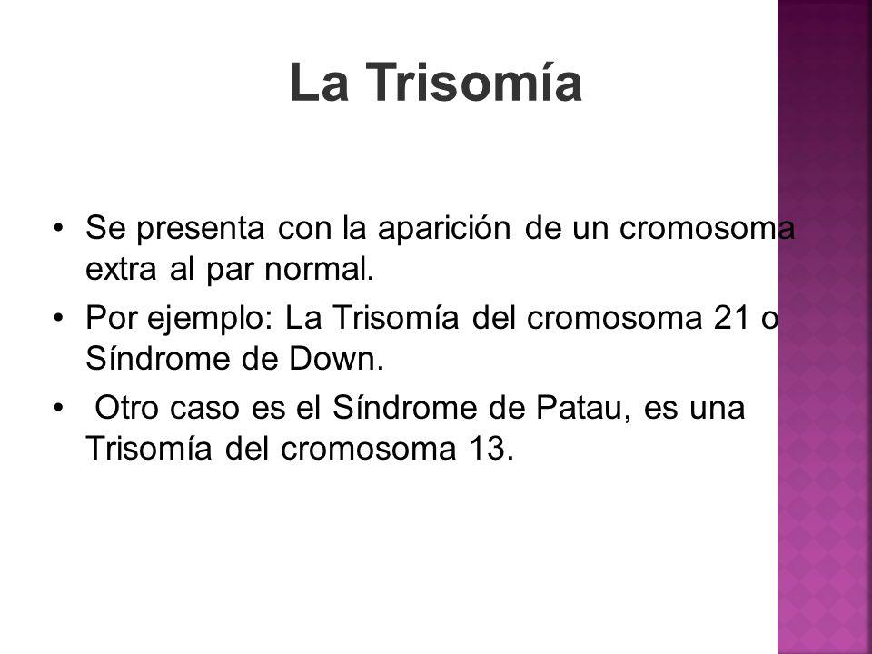 La Trisomía Se presenta con la aparición de un cromosoma extra al par normal. Por ejemplo: La Trisomía del cromosoma 21 o Síndrome de Down. Otro caso