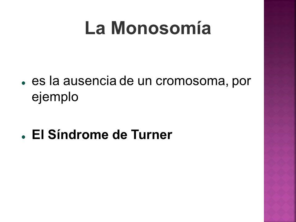 La Monosomía es la ausencia de un cromosoma, por ejemplo El Síndrome de Turner