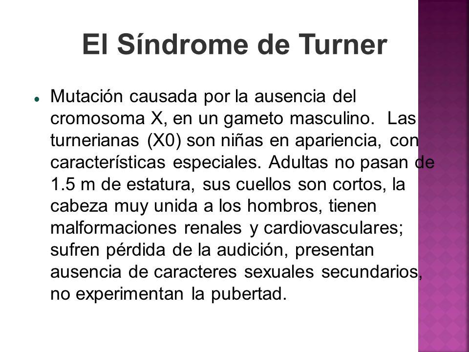 Mutación causada por la ausencia del cromosoma X, en un gameto masculino. Las turnerianas (X0) son niñas en apariencia, con características especiales