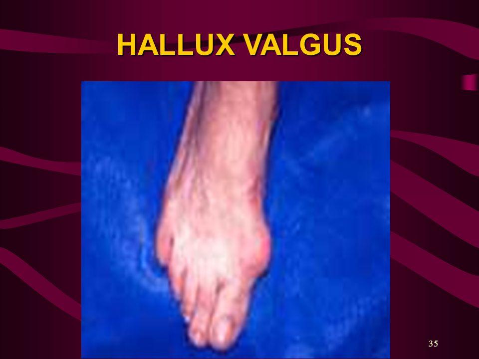 35 HALLUX VALGUS