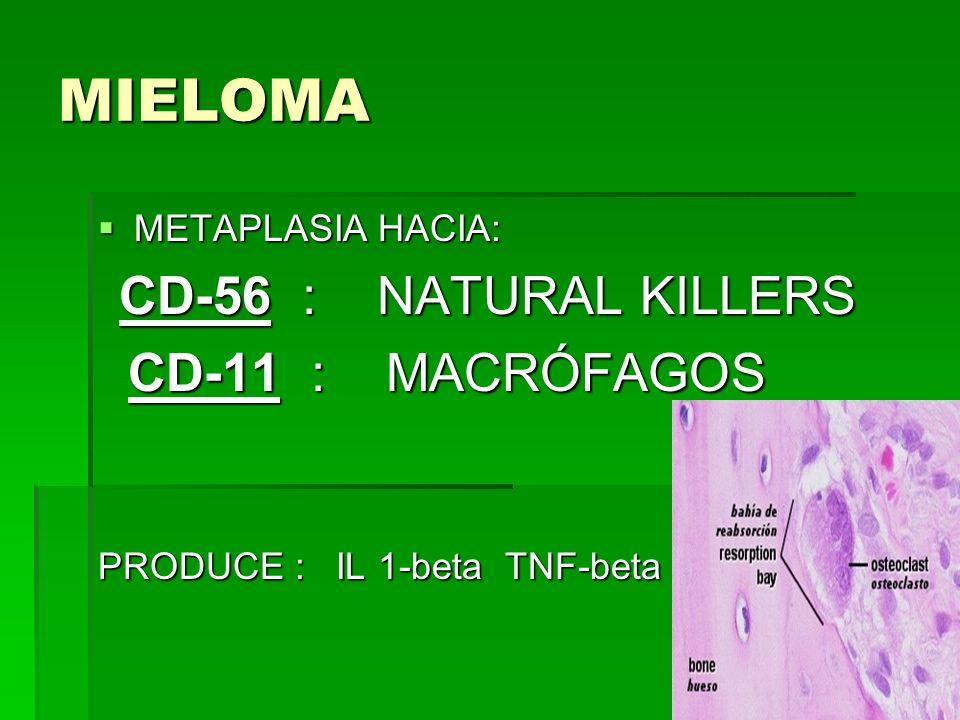 MIELOMA METAPLASIA HACIA: METAPLASIA HACIA: CD-56 : NATURAL KILLERS CD-56 : NATURAL KILLERS CD-11 : MACRÓFAGOS CD-11 : MACRÓFAGOS PRODUCE : IL 1-beta