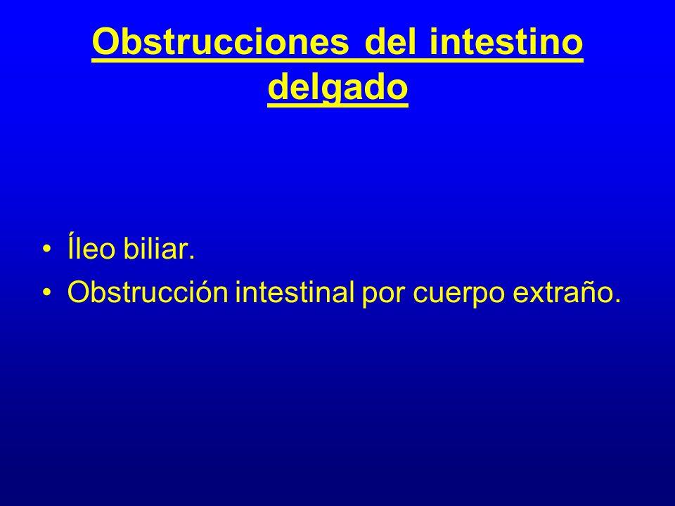 Obstrucciones del intestino delgado Íleo biliar. Obstrucción intestinal por cuerpo extraño.