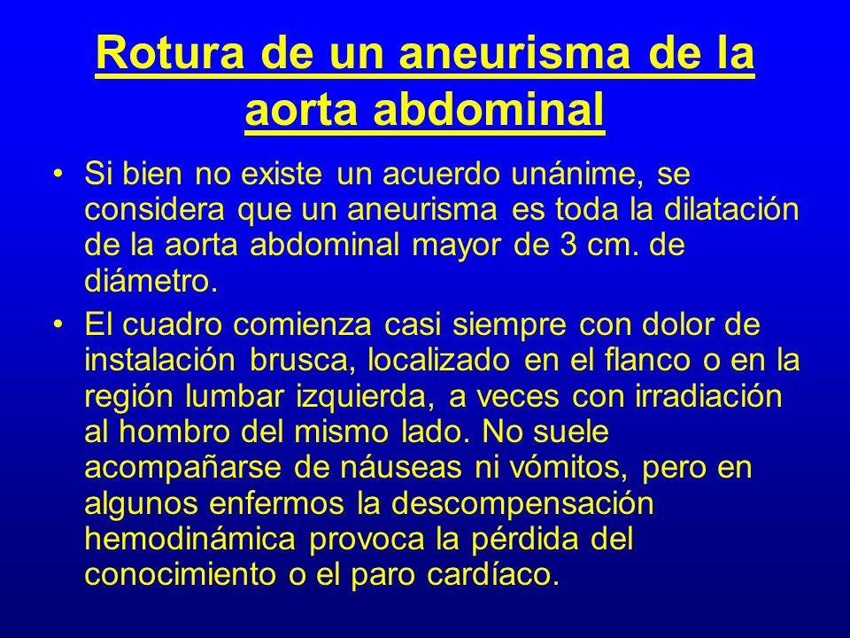 Rotura de un aneurisma de la aorta abdominal Si bien no existe un acuerdo unánime, se considera que un aneurisma es toda la dilatación de la aorta abd