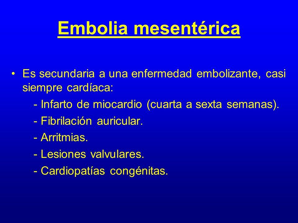Embolia mesentérica Es secundaria a una enfermedad embolizante, casi siempre cardíaca: - Infarto de miocardio (cuarta a sexta semanas). - Fibrilación