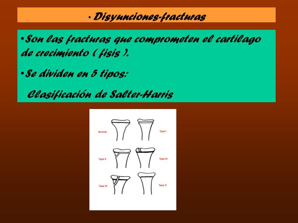Disyunciones-fracturas Son las fracturas que comprometen el cartilago de crecimiento ( fisis ). Se dividen en 5 tipos: Clasificación de Salter-Harris