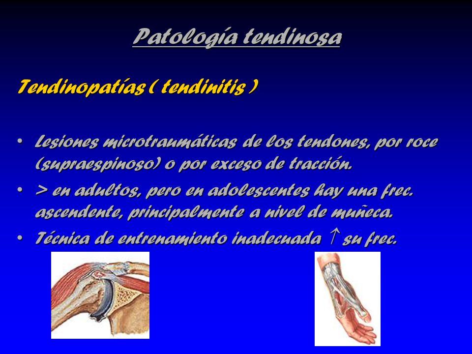 Patología tendinosa Tendinopatías ( tendinitis ) Lesiones microtraumáticas de los tendones, por roce (supraespinoso) o por exceso de tracción.Lesiones