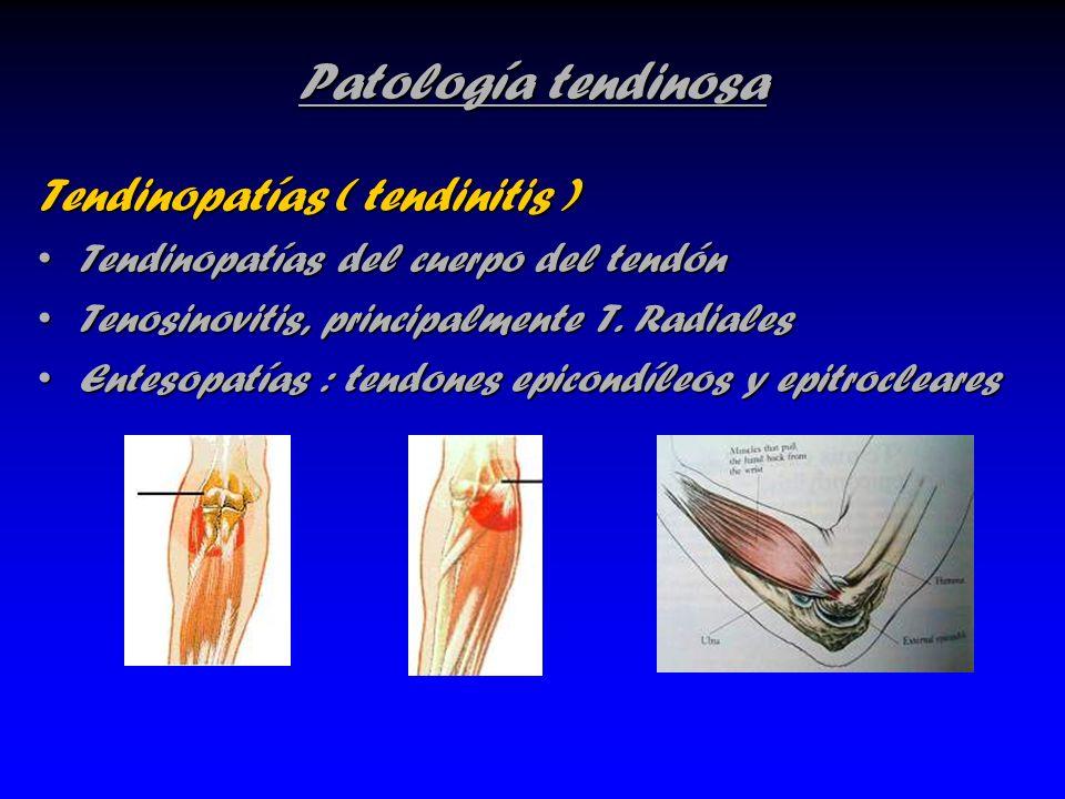 Patología tendinosa Tendinopatías ( tendinitis ) Tendinopatías del cuerpo del tendónTendinopatías del cuerpo del tendón Tenosinovitis, principalmente