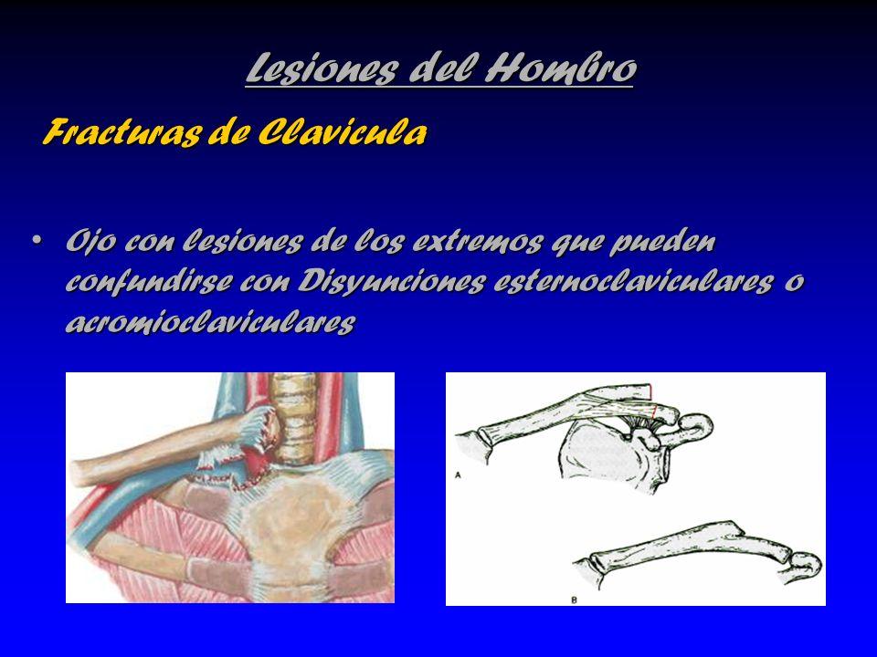 Lesiones del Hombro Fracturas de Clavicula Fracturas de Clavicula Ojo con lesiones de los extremos que pueden confundirse con Disyunciones esternoclav