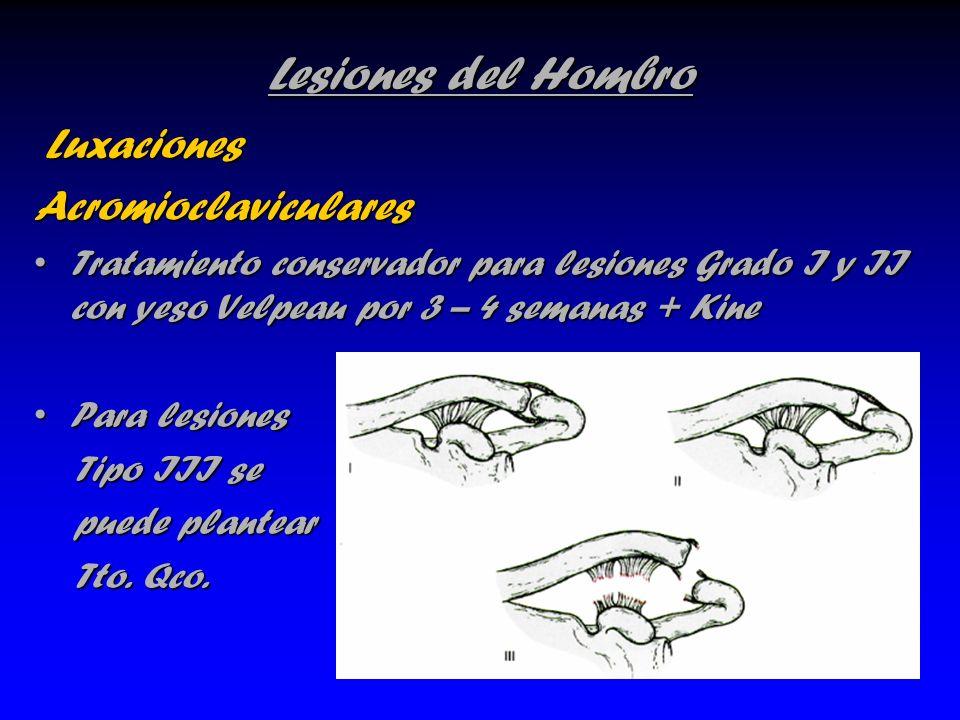 Lesiones del Hombro Luxaciones LuxacionesAcromioclaviculares Tratamiento conservador para lesiones Grado I y II con yeso Velpeau por 3 – 4 semanas + K
