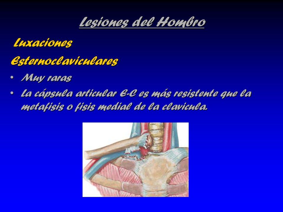 Lesiones del Hombro Luxaciones LuxacionesEsternoclaviculares Muy rarasMuy raras La cápsula articular E-C es más resistente que la metafisis o fisis me