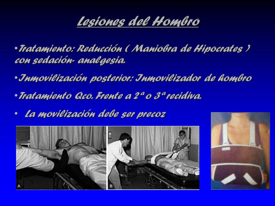 Lesiones del Hombro La movilización debe ser precozLa movilización debe ser precoz Tratamiento: Reducción ( Maniobra de Hipocrates ) con sedación- ana