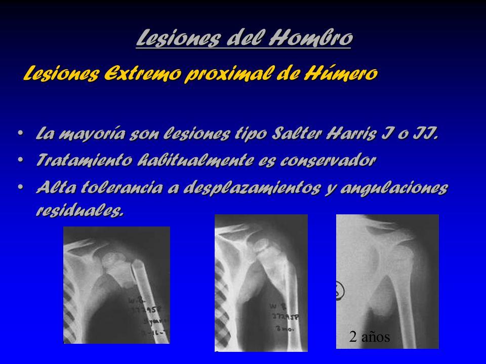 Lesiones del Hombro Lesiones Extremo proximal de Húmero Lesiones Extremo proximal de Húmero La mayoría son lesiones tipo Salter Harris I o II.La mayor