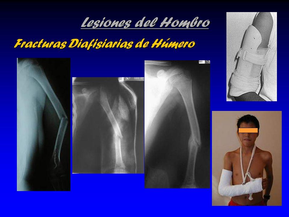 Lesiones del Hombro Fracturas Diafisiarias de Húmero Fracturas Diafisiarias de Húmero