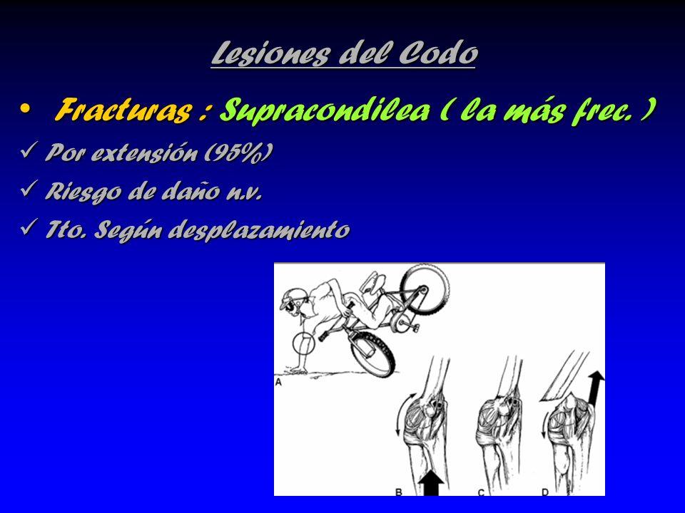 Lesiones del Codo Fracturas : Supracondilea ( la más frec. ) Fracturas : Supracondilea ( la más frec. ) Por extensión (95%) Por extensión (95%) Riesgo