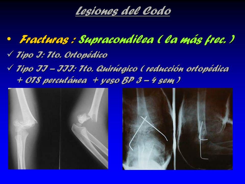 Lesiones del Codo Fracturas : Supracondilea ( la más frec. ) Fracturas : Supracondilea ( la más frec. ) Tipo I: Tto. Ortopédico Tipo I: Tto. Ortopédic