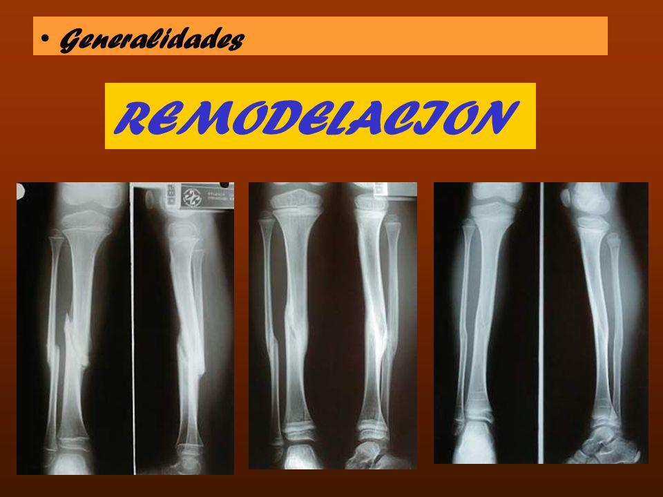 Generalidades REMODELACION