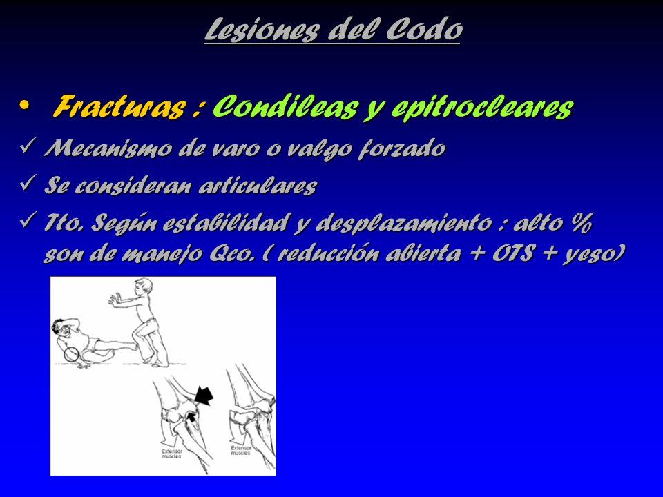 Lesiones del Codo Fracturas : Condileas y epitrocleares Fracturas : Condileas y epitrocleares Mecanismo de varo o valgo forzado Mecanismo de varo o va