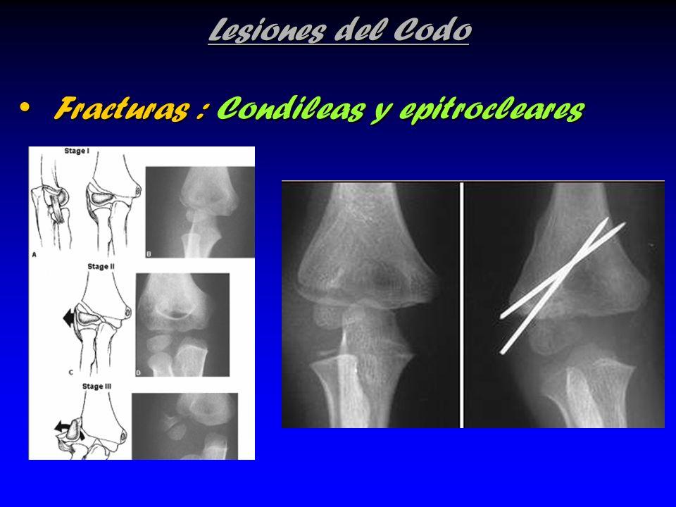 Lesiones del Codo Fracturas : Condileas y epitrocleares Fracturas : Condileas y epitrocleares