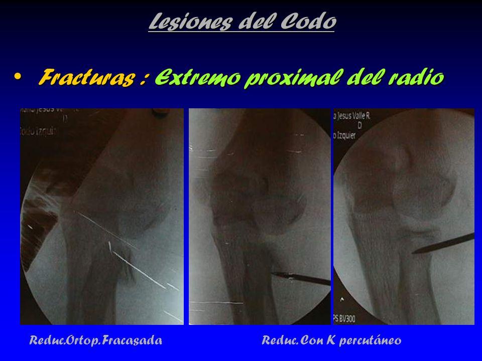 Lesiones del Codo Fracturas : Extremo proximal del radio Fracturas : Extremo proximal del radio Reduc.Ortop. Fracasada Reduc. Con K percutáneo