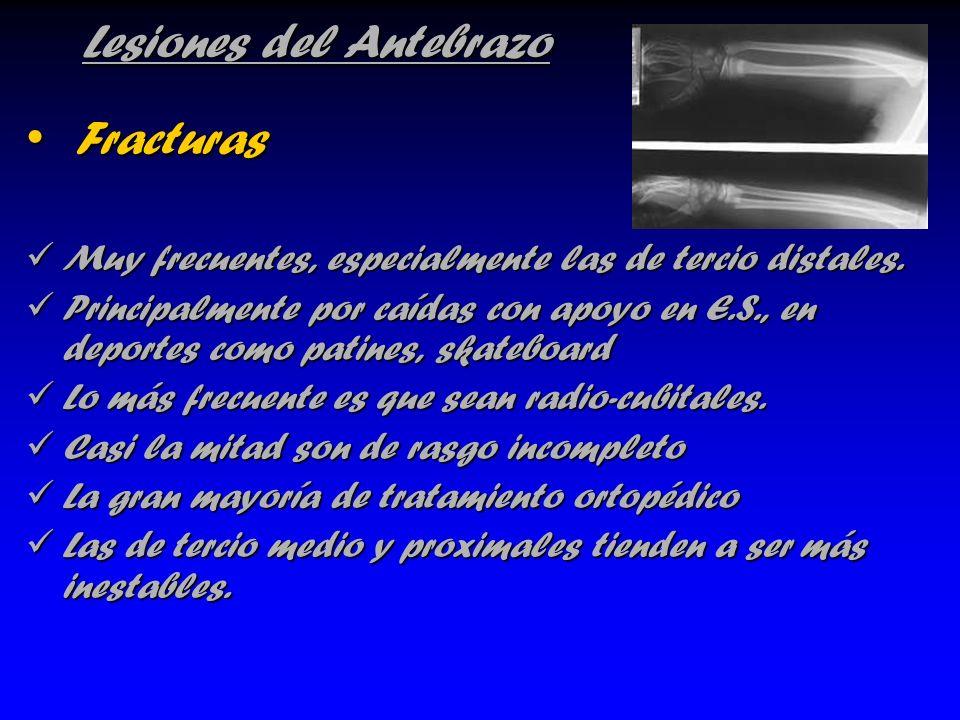 Lesiones del Antebrazo Fracturas Fracturas Muy frecuentes, especialmente las de tercio distales. Muy frecuentes, especialmente las de tercio distales.