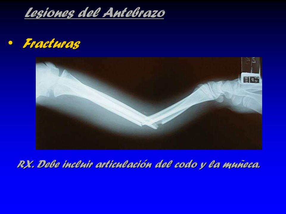 Lesiones del Antebrazo Fracturas Fracturas RX. Debe incluir articulación del codo y la muñeca. RX. Debe incluir articulación del codo y la muñeca.