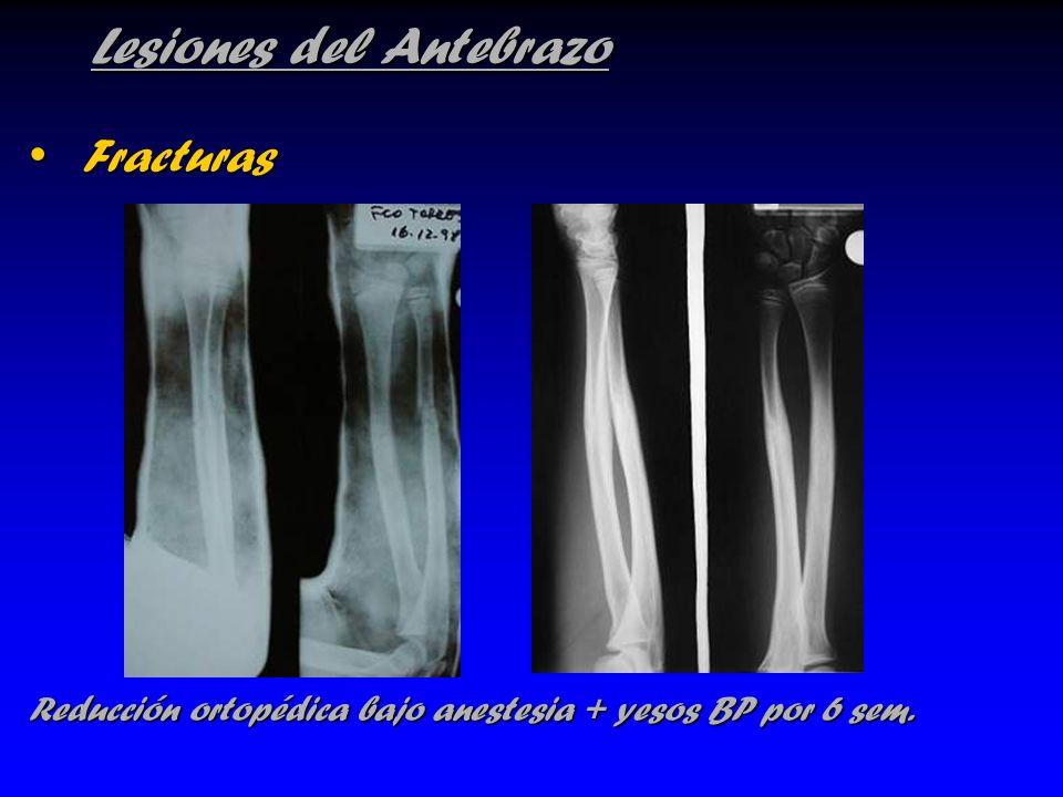 Lesiones del Antebrazo Fracturas Fracturas Reducción ortopédica bajo anestesia + yesos BP por 6 sem.