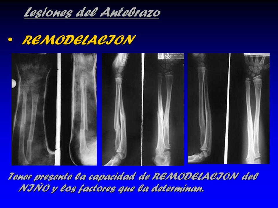 Lesiones del Antebrazo REMODELACION REMODELACION Tener presente la capacidad de REMODELACION del NIÑO y los factores que la determinan.