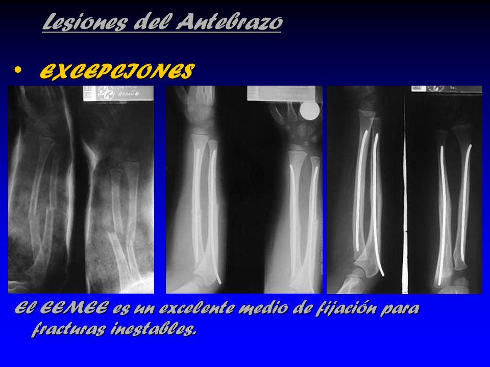 Lesiones del Antebrazo EXCEPCIONES EXCEPCIONES El EEMEE es un excelente medio de fijación para fracturas inestables.