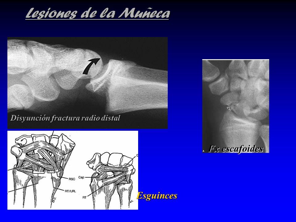 Lesiones de la Muñeca Disyunción fractura radio distal Fx escafoides Esguinces