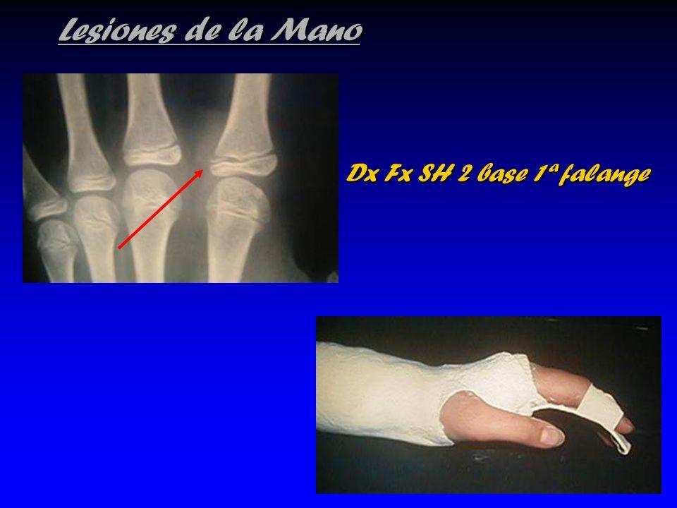Lesiones de la Mano Dx Fx SH 2 base 1ª falange