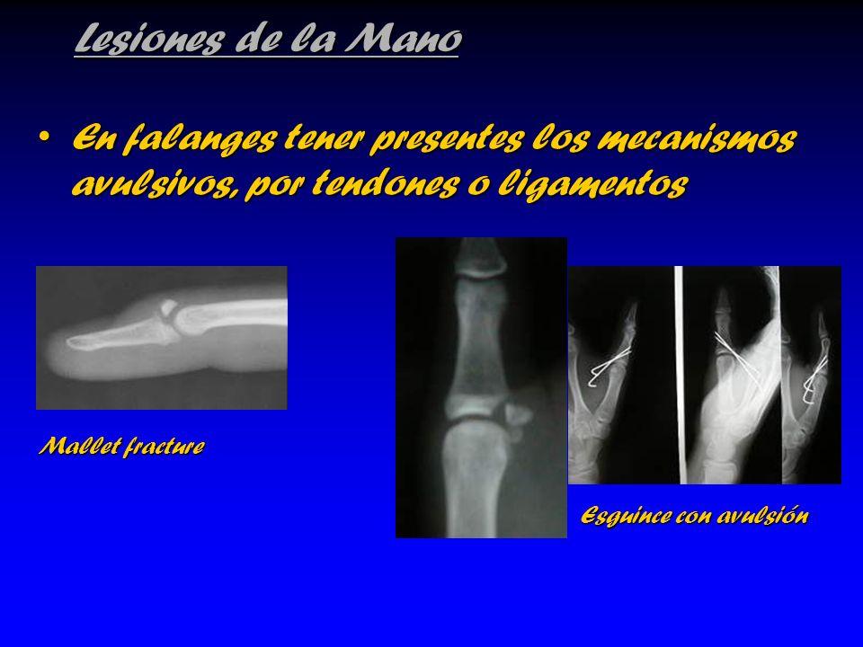 Lesiones de la Mano En falanges tener presentes los mecanismos avulsivos, por tendones o ligamentosEn falanges tener presentes los mecanismos avulsivo