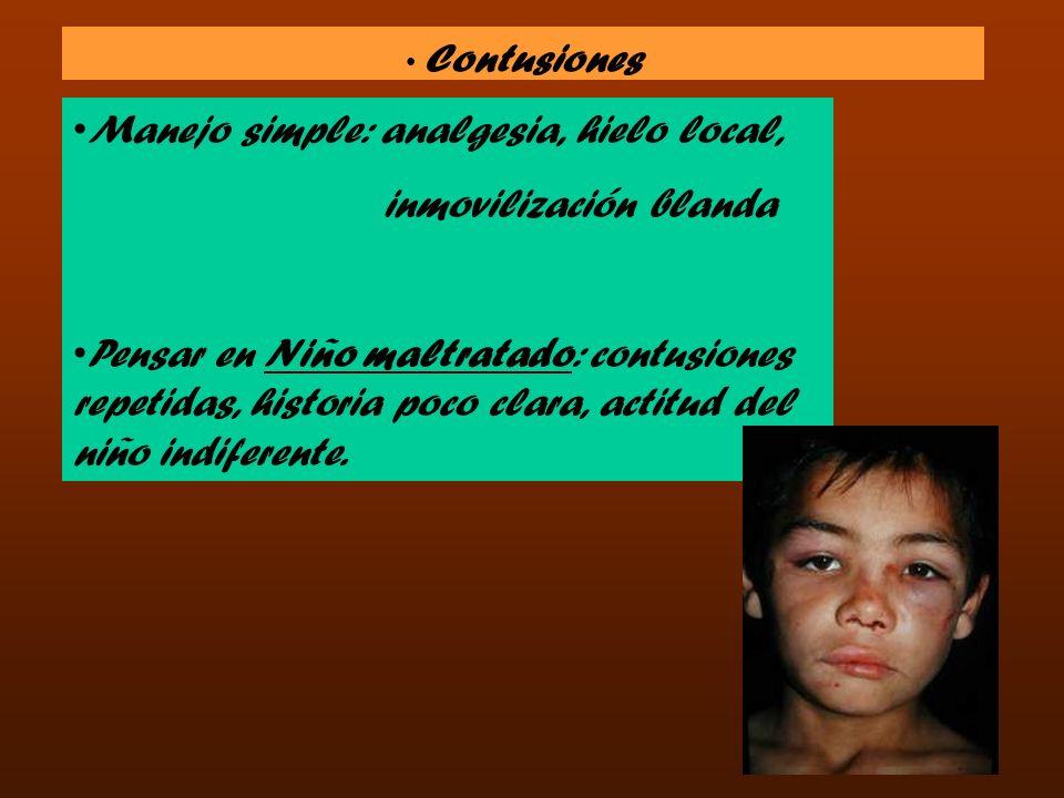 Lesiones del Codo Trauma crónico o repetido Trauma crónico o repetido Epicondilitis ( codo de tenista )Epicondilitis ( codo de tenista ) Epitrocleítis ( codo de golfista )Epitrocleítis ( codo de golfista )