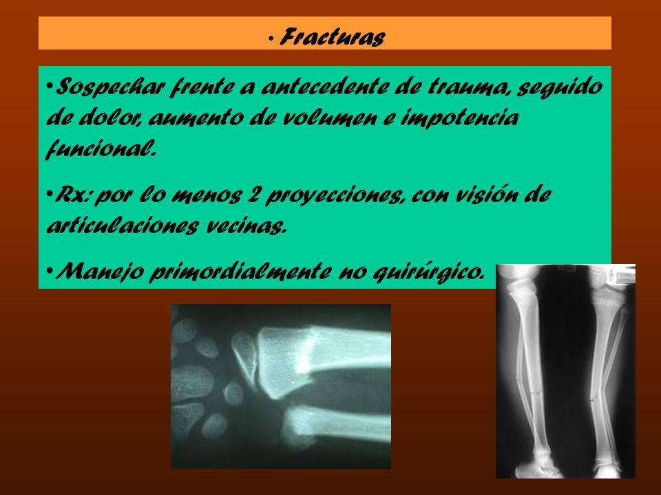 Fracturas Sospechar frente a antecedente de trauma, seguido de dolor, aumento de volumen e impotencia funcional. Rx: por lo menos 2 proyecciones, con