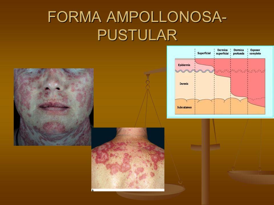 FORMA AMPOLLONOSA- PUSTULAR