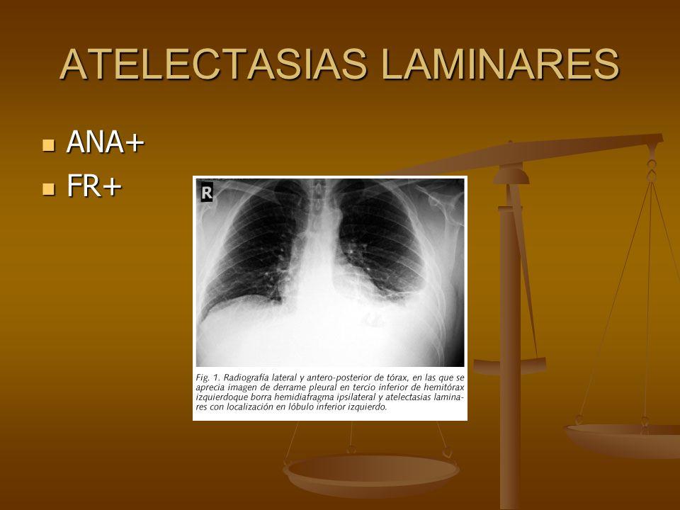 ATELECTASIAS LAMINARES ANA+ ANA+ FR+ FR+