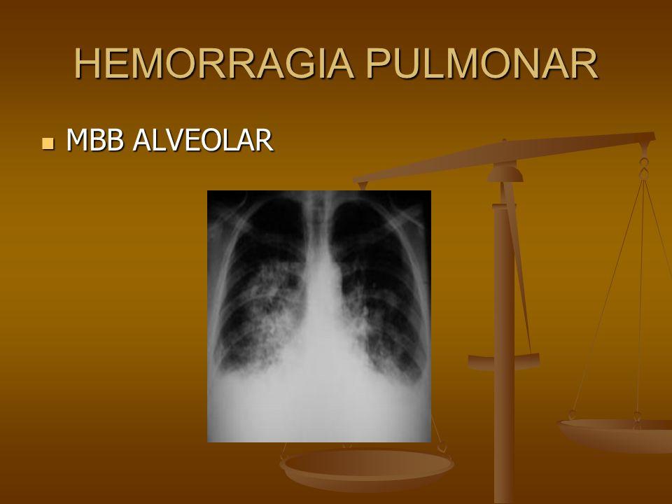 HEMORRAGIA PULMONAR MBB ALVEOLAR MBB ALVEOLAR