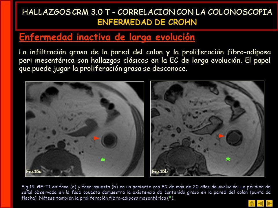 Enfermedad inactiva de larga evolución * La infiltración grasa de la pared del colon y la proliferación fibro-adiposa peri-mesentérica son hallazgos c