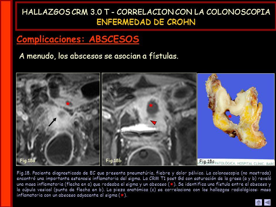 A menudo, los abscesos se asocian a fístulas. Fig.18. Paciente diagnosticado de EC que presenta pneumatúria, fiebre y dolor pélvico. La colonoscopia (
